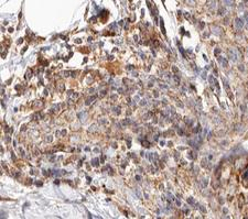 BCAR3 Antibody - 1:100 staining human breast carcinoma tissue by IHC-P. The tissue was formaldehyde fixed and a heat mediated antigen retrieval step in citrate buffer was performed. The tissue was then blocked and incubated with the antibody for 1.5 hours at 22°C. An HRP conjugated goat anti-rabbit antibody was used as the secondary.