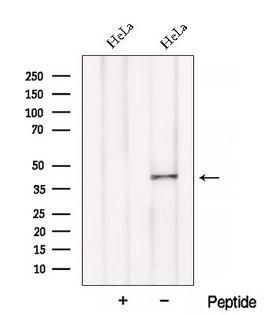 BCAT1 / ECA39 Antibody - Western blot analysis of extracts of HeLa cells using BCAT1/ECA39 antibody. The lane on the left was treated with blocking peptide.