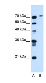 BCHE antibody ARP44208_T100-NP_000046-BCHE(butyrylcholinesterase) Antibody Western blot of HepG2 cell lysate.  This image was taken for the unconjugated form of this product. Other forms have not been tested.