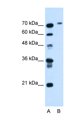 BCHE antibody LS-C40458 Western blot of HepG2 cell lysate.  This image was taken for the unconjugated form of this product. Other forms have not been tested.
