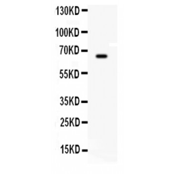 BCHE antibody Western blot. All lanes: Anti BCHE at 0.5 ug/ml. WB: HEPA Whole Cell Lysate at 40 ug. Predicted band size: 66 kD. Observed band size: 66 kD.