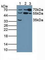 Western Blot; Sample: Lane1: Human Liver Tissue ; Lane2: Human Hela Cells; Lane3: Rat Serum.