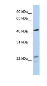 BCKDHA antibody Western blot of MCF7 cell lysate. This image was taken for the unconjugated form of this product. Other forms have not been tested.