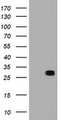 HEK293T cells were transfected with the pCMV6-ENTRY control (Left lane) or pCMV6-ENTRY BCL10 (Right lane) cDNA for 48 hrs and lysed. Equivalent amounts of cell lysates (5 ug per lane) were separated by SDS-PAGE and immunoblotted with anti-BCL10.