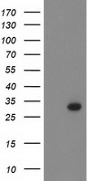 BCL10 / BCL-10 Antibody - HEK293T cells were transfected with the pCMV6-ENTRY control (Left lane) or pCMV6-ENTRY BCL10 (Right lane) cDNA for 48 hrs and lysed. Equivalent amounts of cell lysates (5 ug per lane) were separated by SDS-PAGE and immunoblotted with anti-BCL10.