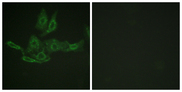 Immunofluorescence analysis of HepG2 cells, using BCL-2 Antibody. The picture on the right is blocked with the synthesized peptide.