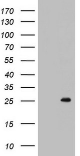 BCL2 / Bcl-2 Antibody - HEK293T cells were transfected with the pCMV6-ENTRY control (Left lane) or pCMV6-ENTRY BCL2 (Right lane) cDNA for 48 hrs and lysed. Equivalent amounts of cell lysates (5 ug per lane) were separated by SDS-PAGE and immunoblotted with anti-BCL2.