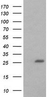 HEK293T cells were transfected with the pCMV6-ENTRY control (Left lane) or pCMV6-ENTRY BCL2L1 (Right lane) cDNA for 48 hrs and lysed. Equivalent amounts of cell lysates (5 ug per lane) were separated by SDS-PAGE and immunoblotted with anti-BCL2L1.