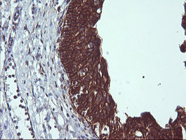 IHC of paraffin-embedded Human bladder tissue using anti-BCL2L1 mouse monoclonal antibody.