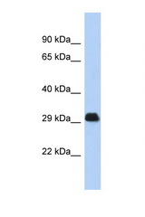 BCL2L1 / Bcl-x antibody LS-C112277 Western blot of Fetal Thymus lysate. Antibody concentration 1 ug/ml.  This image was taken for the unconjugated form of this product. Other forms have not been tested.