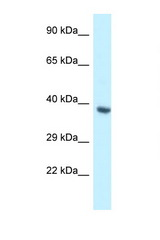 BCL2L12 antibody Western blot of Fetal Heart lysate. Antibody concentration 1 ug/ml.  This image was taken for the unconjugated form of this product. Other forms have not been tested.