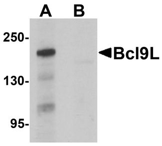 BCL9L Antibody - Western blot analysis of Bcl9L in HeLa cell lysate with Bcl9L antibody at 1 ug/ml in (A) the absence and (B) the presence of blocking peptide.