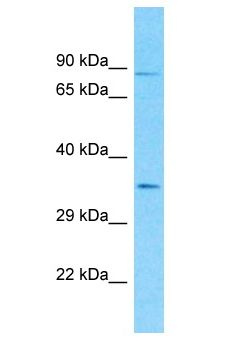 Bcr-Abl Antibody - Bcr-Abl antibody Western Blot of HCT15. Antibody dilution: 1 ug/ml.  This image was taken for the unconjugated form of this product. Other forms have not been tested.