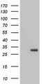 HEK293T cells were transfected with the pCMV6-ENTRY control (Left lane) or pCMV6-ENTRY BDH2 (Right lane) cDNA for 48 hrs and lysed. Equivalent amounts of cell lysates (5 ug per lane) were separated by SDS-PAGE and immunoblotted with anti-BDH2.