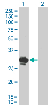 Western Blot analysis of BDNF expression in transfected 293T cell line by BDNF monoclonal antibody (M02), clone 1B10.Lane 1: BDNF transfected lysate(28.9 KDa).Lane 2: Non-transfected lysate.