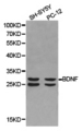 Western blot of extracts of SH-SY5Y cell and PC-12 cell lines, using BDNF antibody.