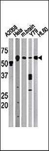 BECN1 / Beclin-1 Antibody - The anti-BECN1 antibody is used in Western blot to detect BECN1 in, from left to right, A2058, HeLa, mouse brain, Y79, and HL60 tissue lysates. BECN1(arrow) was detected using the purified antibody.