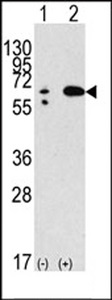 BECN1 / Beclin-1 Antibody - Western blot of anti-hBECN1-E225 antibody in 293 cell line lysates transiently transfected with the BECN1 gene (2 ug/lane). hBECN1-E225(arrow) was detected using the purified antibody.