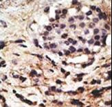 BECN1 / Beclin-1 Antibody - Formalin-fixed and paraffin-embedded human cancer tissue reacted with the primary antibody, which was peroxidase-conjugated to the secondary antibody, followed by DAB staining. This data demonstrates the use of this antibody for immunohistochemistry; clinical relevance has not been evaluated. BC = breast carcinoma; HC = hepatocarcinoma.