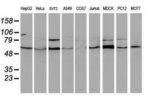BECN1 / Beclin-1 Antibody - Western blot of extracts (35 ug) from 9 different cell lines by using anti-BECN1 monoclonal antibody.