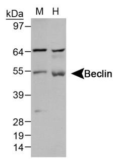 BECN1 / Beclin-1 Antibody - Detection of Beclin 1 in liver lysates. Lane 1: mouse liver Lane 2: human liver