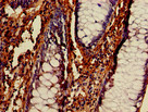Immunohistochemistry of paraffin-embedded human colon cancer using BECN1 Antibody at dilution of 1:100
