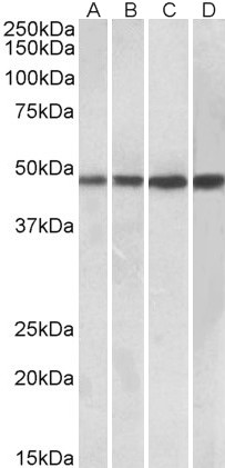 BEND5 antibody (0.3 ug/ml) staining of Daudi (A), Human Tonsil (B), Human Spleen (C) and Mouse Spleen (D) lysates (35 ug protein in RIPA buffer). Primary incubation was 1 hour. Detected by chemiluminescence.