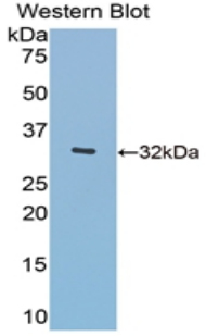 Western blot of recombinant O-GlcNAcase / MGEA5.  This image was taken for the unconjugated form of this product. Other forms have not been tested.