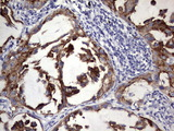 IHC of paraffin-embedded Carcinoma of Human lung tissue using anti-BFSP1 mouse monoclonal antibody. (Heat-induced epitope retrieval by 1 mM EDTA in 10mM Tris, pH8.5, 120°C for 3min).