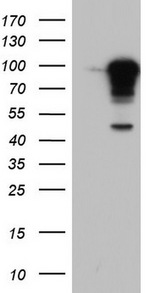 HEK293T cells were transfected with the pCMV6-ENTRY control (Left lane) or pCMV6-ENTRY BFSP1 (Right lane) cDNA for 48 hrs and lysed. Equivalent amounts of cell lysates (5 ug per lane) were separated by SDS-PAGE and immunoblotted with anti-BFSP1.