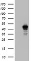 HEK293T cells were transfected with the pCMV6-ENTRY control (Left lane) or pCMV6-ENTRY BFSP2 (Right lane) cDNA for 48 hrs and lysed. Equivalent amounts of cell lysates (5 ug per lane) were separated by SDS-PAGE and immunoblotted with anti-BFSP2.