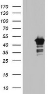 BFSP2 Antibody - HEK293T cells were transfected with the pCMV6-ENTRY control. (Left lane) or pCMV6-ENTRY BFSP2. (Right lane) cDNA for 48 hrs and lysed. Equivalent amounts of cell lysates. (5 ug per lane) were separated by SDS-PAGE and immunoblotted with anti-BFSP2.