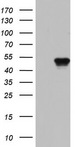 BFSP2 Antibody - HEK293T cells were transfected with the pCMV6-ENTRY control (Left lane) or pCMV6-ENTRY BFSP2 (Right lane) cDNA for 48 hrs and lysed. Equivalent amounts of cell lysates (5 ug per lane) were separated by SDS-PAGE and immunoblotted with anti-BFSP2.