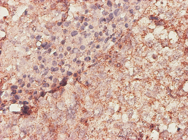 Immunohistochemistry of monoclonal antibody to BGN on formalin-fixed paraffin-embedded human lung, adenosquamous cell carcinoma. [antibody concentration 1 ~ 10 ug/ml]