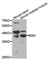 BGN / Biglycan Antibody - Western blot analysis of extracts of various cell lines.