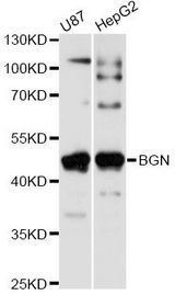 Western blot analysis of extracts of various cell lines, using BGN antibody at 1:1000 dilution. The secondary antibody used was an HRP Goat Anti-Rabbit IgG (H+L) at 1:10000 dilution. Lysates were loaded 25ug per lane and 3% nonfat dry milk in TBST was used for blocking. An ECL Kit was used for detection and the exposure time was 5s.