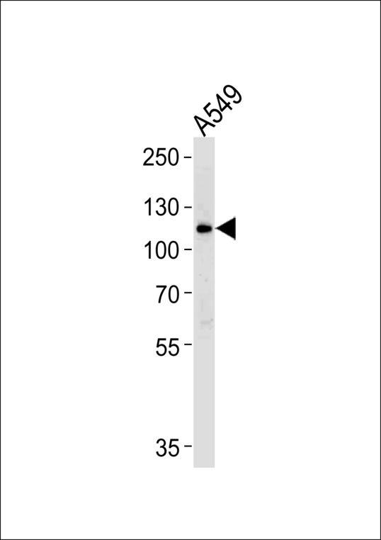 BICC1 Antibody - Western blot of lysate from A549 cell line with BICC1 Antibody. Antibody was diluted at 1:1000. A goat anti-rabbit IgG H&L (HRP) at 1:5000 dilution was used as the secondary antibody. Lysate at 35 ug.