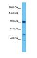 Western blot of BICC1 Antibody with human MCF7 Whole Cell lysate.  This image was taken for the unconjugated form of this product. Other forms have not been tested.