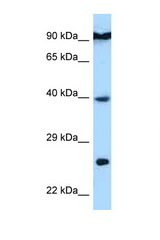 BID antibody LS-C146044 Western blot of HepG2 Cell lysate. Antibody concentration 1 ug/ml.  This image was taken for the unconjugated form of this product. Other forms have not been tested.