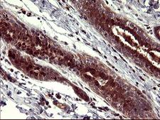 BID Antibody - IHC of paraffin-embedded Human breast tissue using anti-BID mouse monoclonal antibody. (Heat-induced epitope retrieval by 10mM citric buffer, pH6.0, 120°C for 3min).