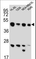 BIN2 Antibody western blot of HL-60,CEM,MDA-MB435,A549 cell line lysates (15 ug/lane). The BIN2 antibody detected the BIN2 protein (arrow).