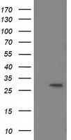 BIN3 Antibody - HEK293T cells were transfected with the pCMV6-ENTRY control (Left lane) or pCMV6-ENTRY BIN3 (Right lane) cDNA for 48 hrs and lysed. Equivalent amounts of cell lysates (5 ug per lane) were separated by SDS-PAGE and immunoblotted with anti-BIN3.