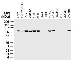 Western blot of cIAP1 in various cancer cell lines using Polyclonal Antibody to cIAP1 at 1:2000.