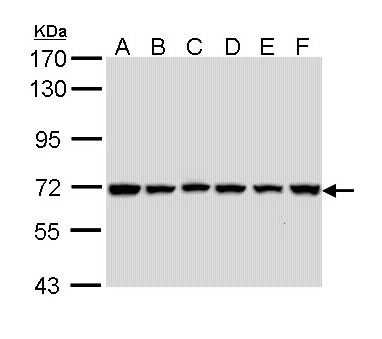 Sample (30 ug of whole cell lysate). A: 293T. B: A431. C: H1299. D: Hela. E: Hep G2. F: Molt-4. 7.5% SDS PAGE. BIRC3 antibody diluted at 1:1000.