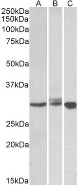 Staining (0.5?g/ml) of Daudi (A), Jurkat (B) and K562 (C) lysates (35?g protein in RIPA buffer). Primary incubation was 1 hour. Detected by chemiluminescence.