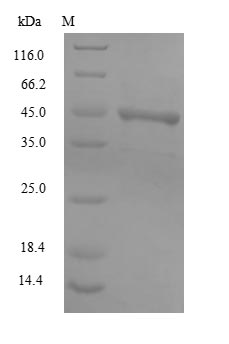 Capsid Protein VP1 Protein - (Tris-Glycine gel) Discontinuous SDS-PAGE (reduced) with 5% enrichment gel and 15% separation gel.