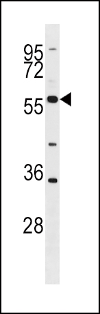 BLK Antibody (G1) western blot of HL-60 cell line lysates (35 ug/lane). The BLK antibody detected the BLK protein (arrow).