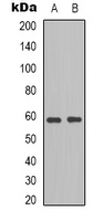 Western blot analysis of BLK expression in HepG2 (A); HEK293T (B) whole cell lysates.