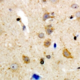 Immunohistochemical analysis of BLK staining in human brain formalin fixed paraffin embedded tissue section. The section was pre-treated using heat mediated antigen retrieval with sodium citrate buffer (pH 6.0). The section was then incubated with the antibody at room temperature and detected using an HRP polymer system. DAB was used as the chromogen. The section was then counterstained with hematoxylin and mounted with DPX.