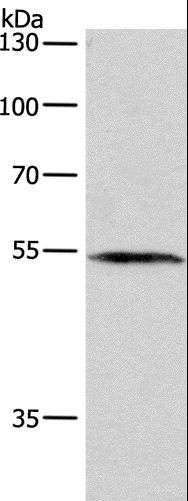 Western blot analysis of A172 cell, using BLK Polyclonal Antibody at dilution of 1:250.